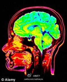 研究称自闭症男孩脑容量比常人大
